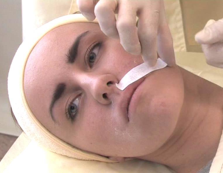 эпиляция волос на лице воском отзывы