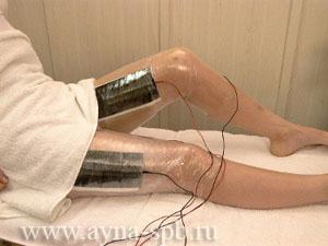 как делают электрофорез в гинекологии
