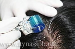 гормональные таблетки для быстрого роста волос