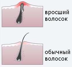 врастают волосы в зоне бикини что делать